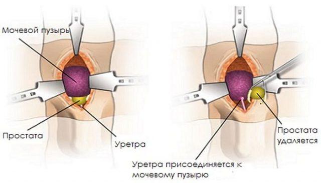 Простатэктомия (схема)