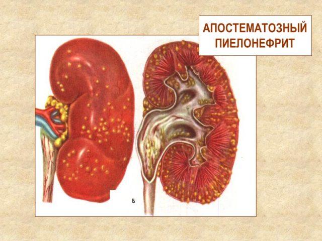 Апостематозный пиелонефрит