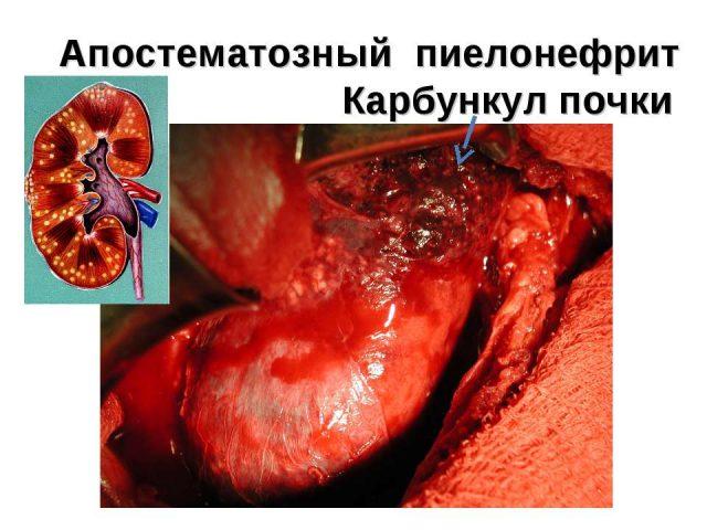 Операция при карбункуле почки