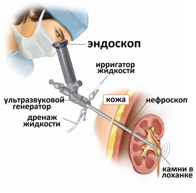 Перкутанная (чрескожная) литотрипсия