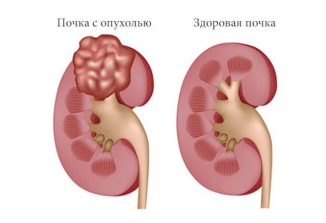 Здоровая почка и почка с опухолью