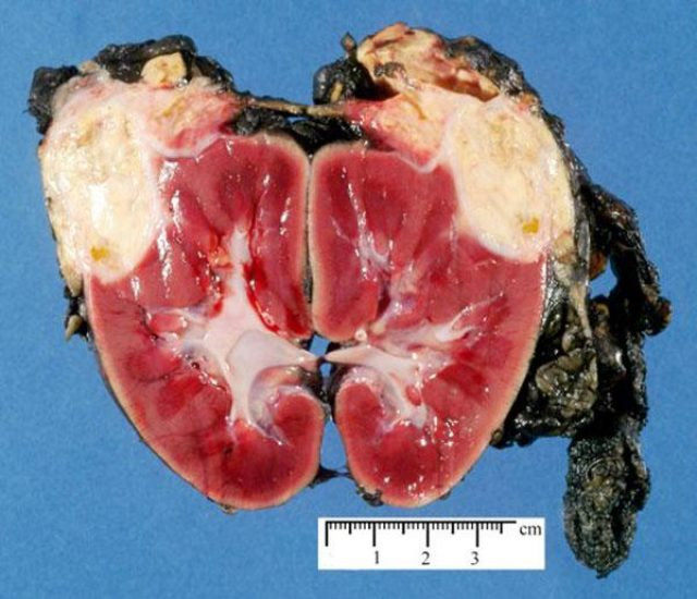 Нефробластома в разрезе