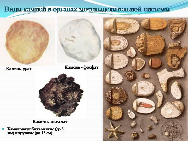 индейских виды камней в почках фото и описание это, доверяют работу