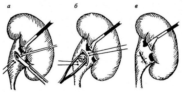 Операция по удалению камня (схема)