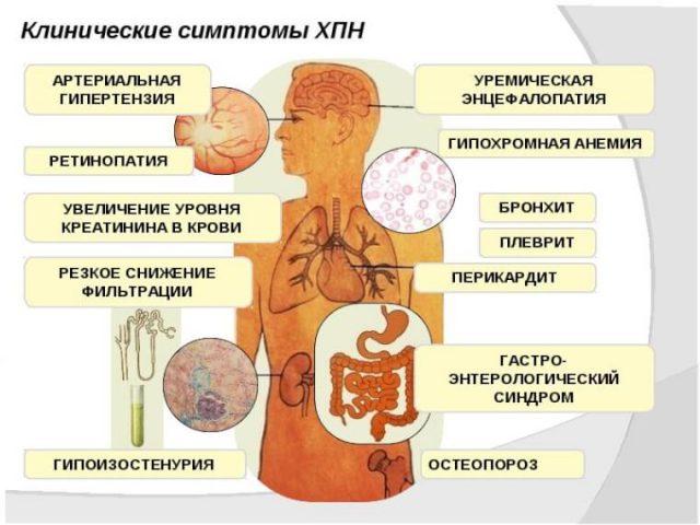 Симптомы хронической почечной недостаточности (схема)