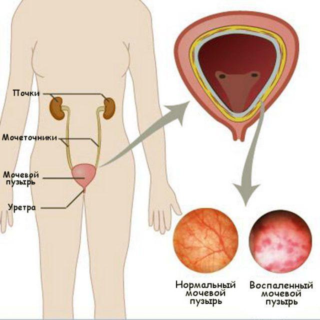 Схематичное изображение нормального и воспалённого мочевого пузыря