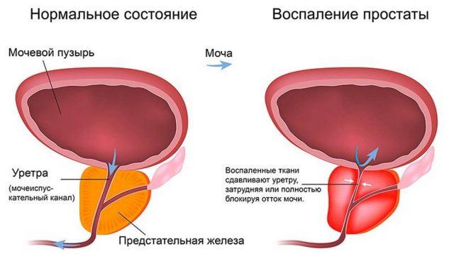 Воспалённая простата сдавливает мочеиспускательный канал: схема