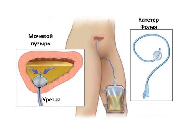 Катетеризация мочевого пузыря катетером Фолея: схема