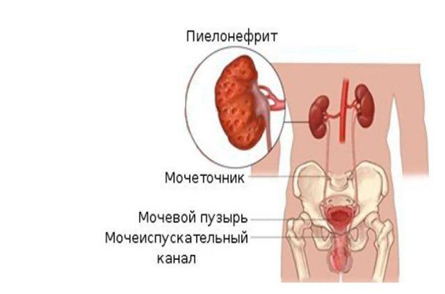 Мочевыделительная система человека и пиелонефрит: схема