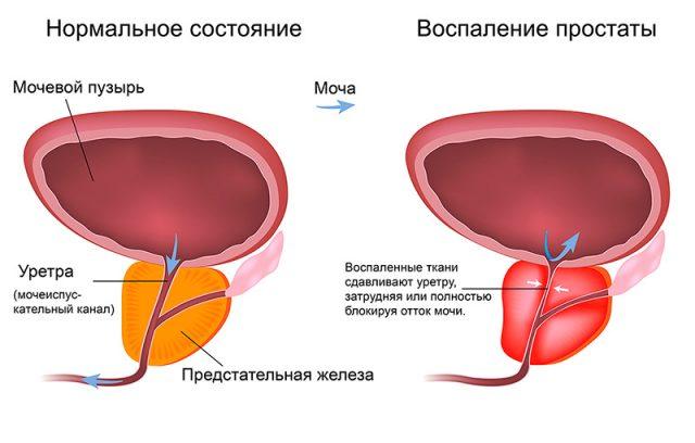 Сравнение здоровой и воспалённой простаты: схема