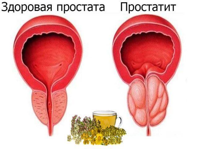 Здоровая и воспалённая простата на схеме