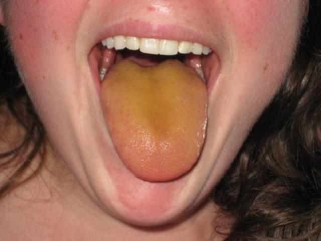 Язык с желтым налётом