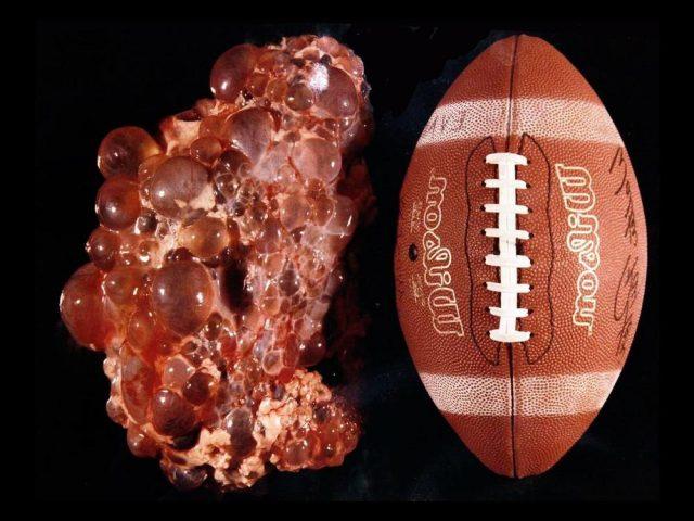 Поражённая почка в сравнении с мячом