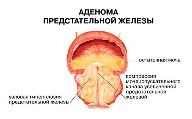 Аденома простаты и остаточная моча в пузыре