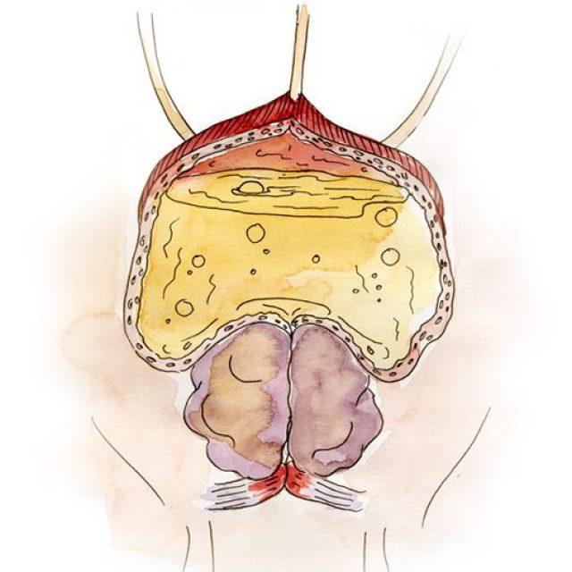Мочевой пузырь на последней третьей стадии аденомы простаты