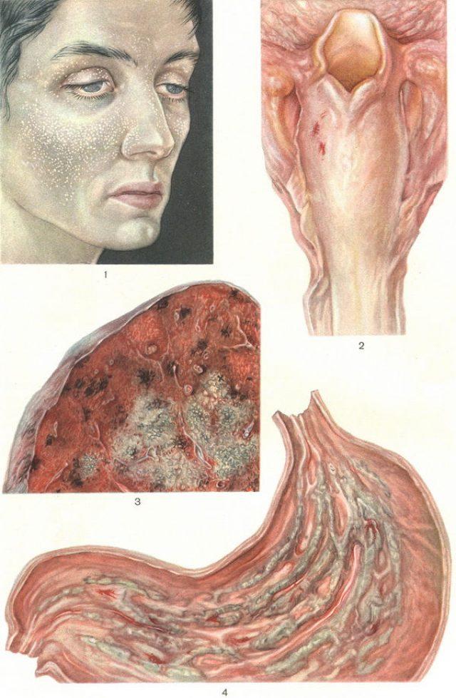 Уремические воспалительные заболевания