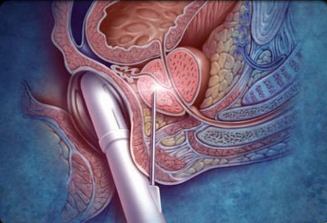 Трансректальное УЗИ рака простаты