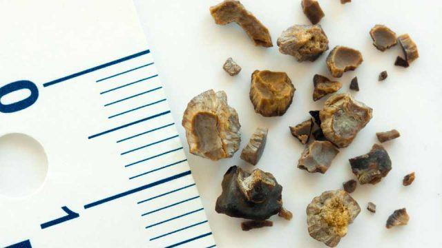 Камни, удалённые из мочеточников