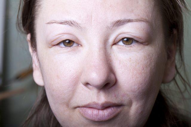 Женщина с отёчностью лица