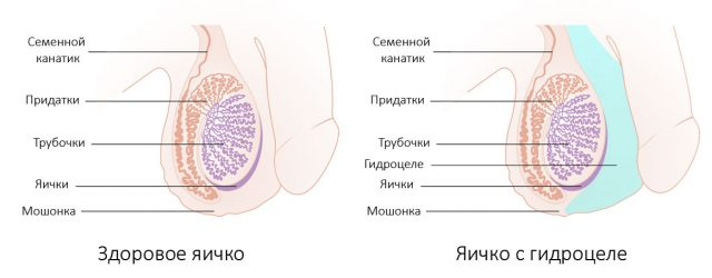 Здоровое яичко и гидроцеле на схеме