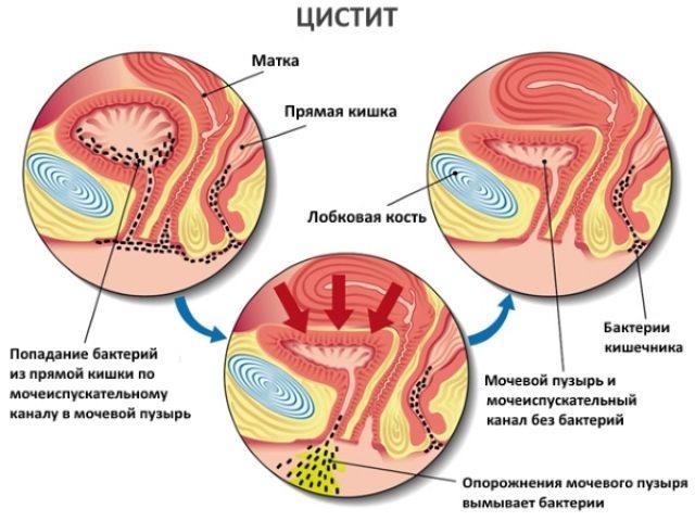 Патогенез развития цистита