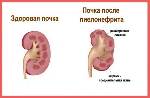 Почки: здоровая и поражённая пиелонефритом