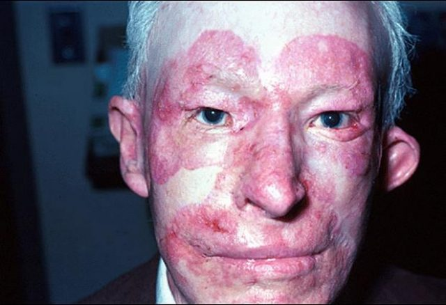 Внешние признаки волчанки на лице у мужчины