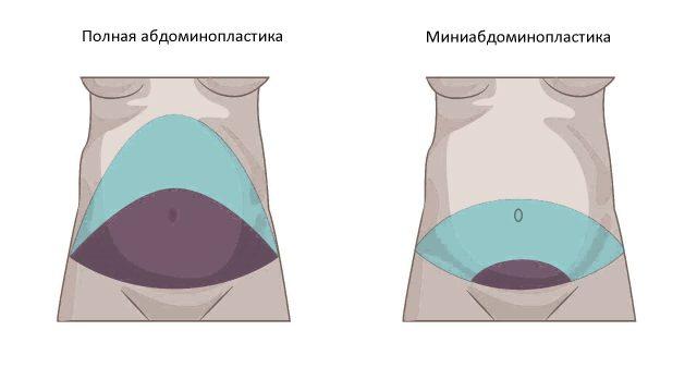 Отличия полной и миниабдоминопластики