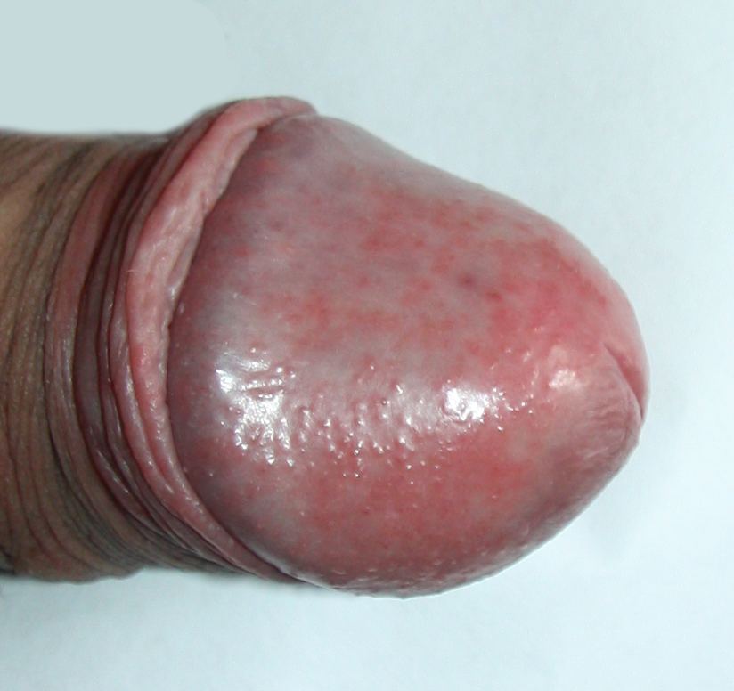 Common causes of bumps or spots on penis or foreskin