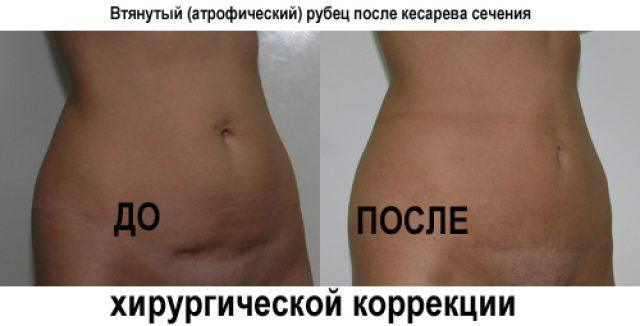 хирургическая коррекция