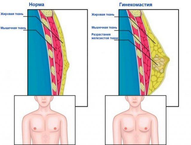 Нормальная грудная железа и гинекомастия
