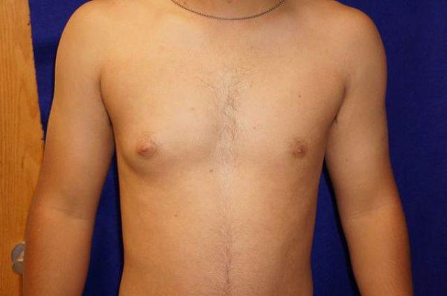 Односторонняя гинекомастия