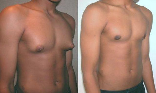 Юноша до и после операции по поводу гинекомастии