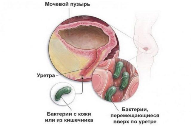 Восходящий путь проникновения бактерий в мочевой пузырь