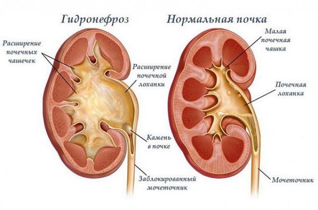 Почки: норма и гидронефроз