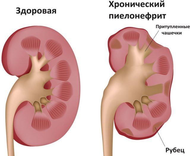 Здоровая почка и поражённая пиелонефритом