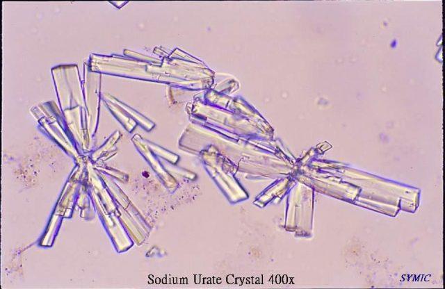 Кристаллы уратов в моче (вид под микроскопом)