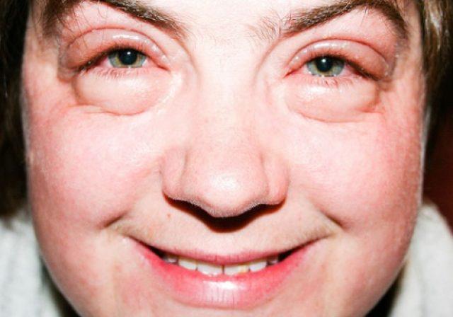 Отёк лица при почечной патологии
