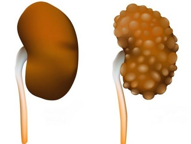 Здоровая почка (слева) и поражённая мультикистозом (справа)