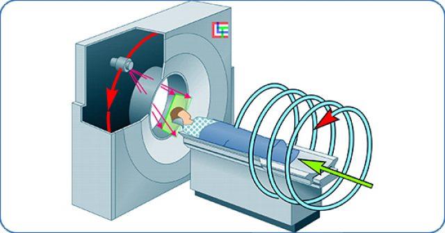 Спиральная компьютерная томография: схема