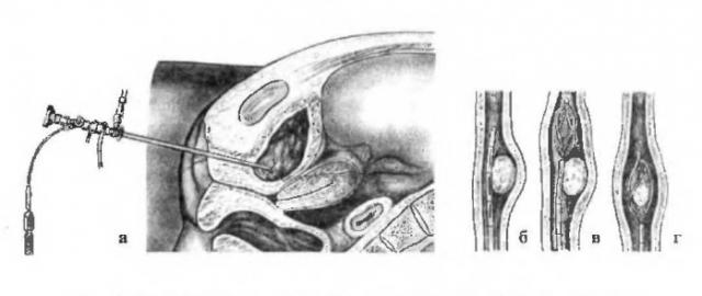 Эндоскопическое извлечение камня из мочеточника (схема)