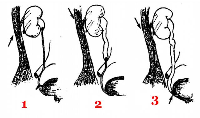 Места наиболее вероятного застревания камня в мочевых путях: схема