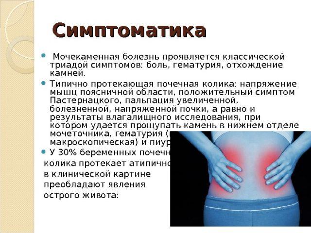 Симптомы камней в почках у беременных
