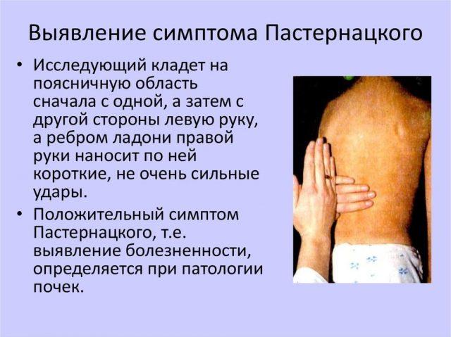 Выявление симптома Пастернацкого