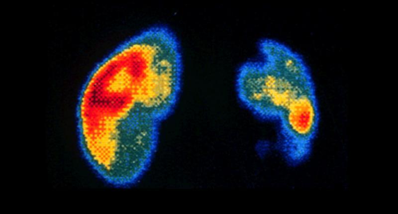 Нефросцинтиграфия почек (динамическая и статическая): что это такое, как проводится
