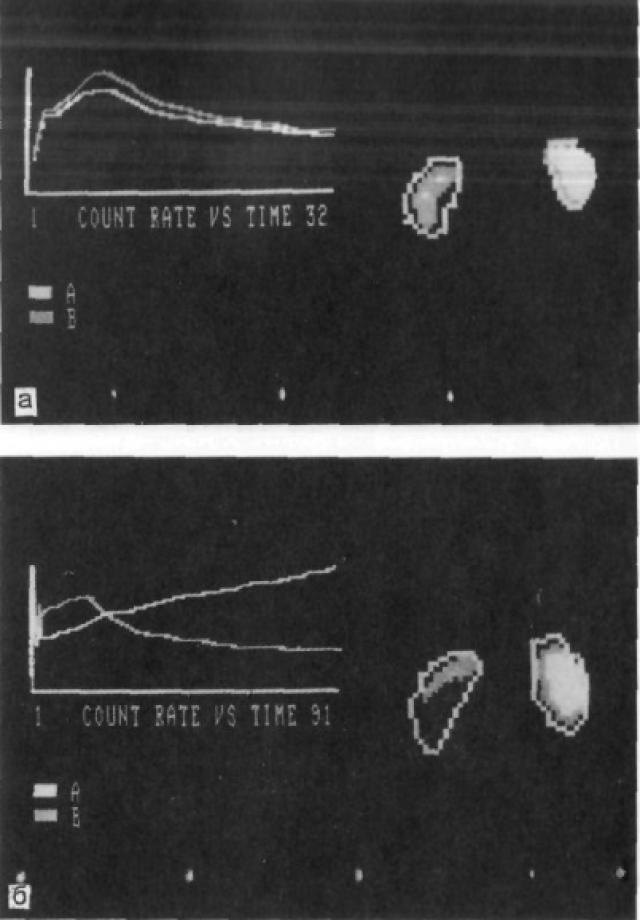 Динамические сцинтиграммы почек