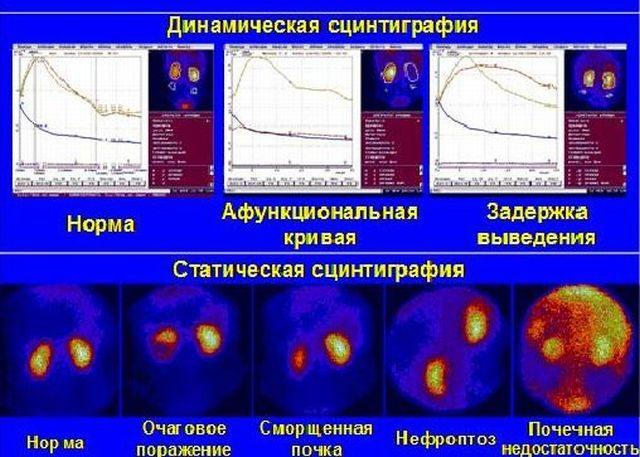 Результаты нефросцинтиграфии