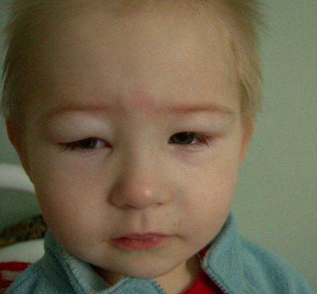 Отёки на лице у ребёнка