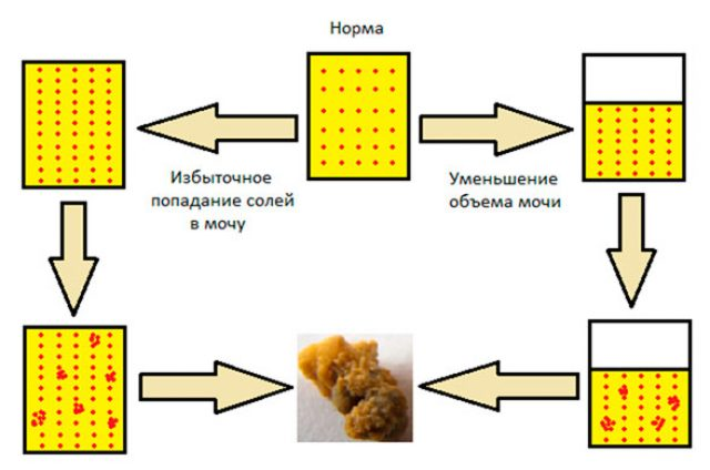 Механизм образования камней в почках