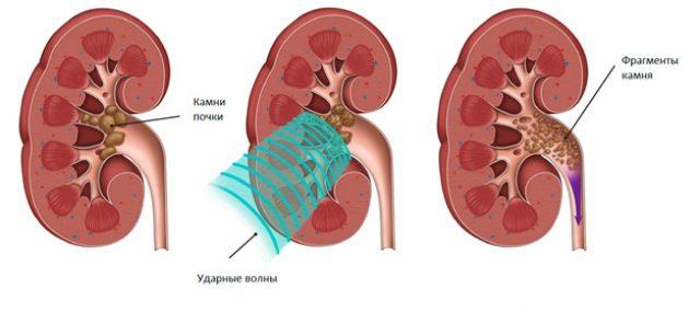 Экстракорпоральная ударно-волновая литотрипсия